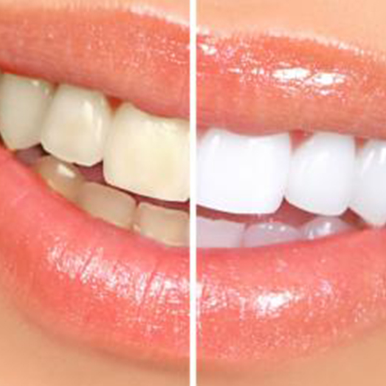 Aesthetic Dental Studio - Vandhana Ahuja DDS- Before and After Gallery