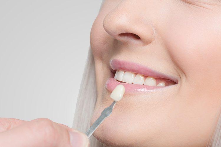Aesthetic Dental Studio - Vandhana Ahuja, DDS- Dentist- Hamilton, NJ-Cosmetic Dentistry