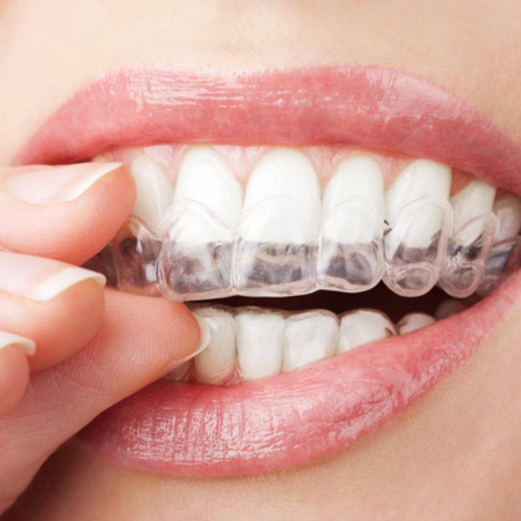 Aesthetic Dental Studio - Dentist- Hamilton, NJ - Invisalign
